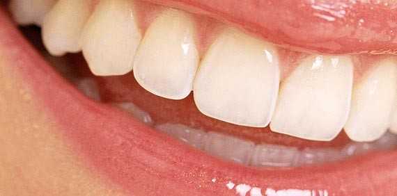Teeth Whitening Advice for this summer