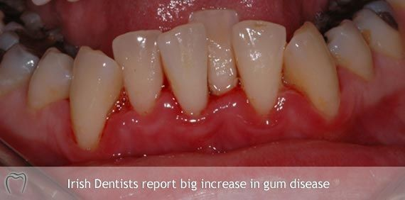 Dentists Seeing Big Increase in Gum Disease