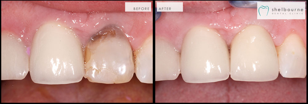 Before and After Cases from Dublin Dentists