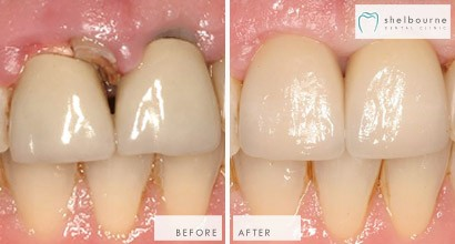 Using A Crown And Implant To Restore Natural Appearance