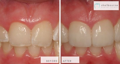 Using Veneers To Improve The Appearance Of Front Teeth