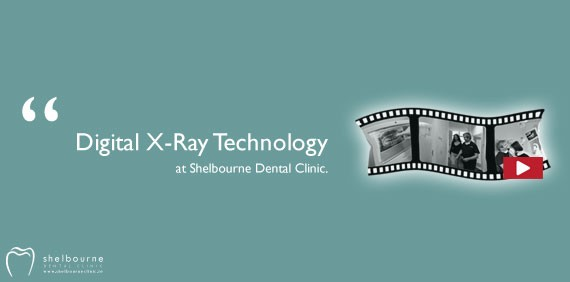 Video: Digital X-ray Technology at Shelbourne Dental Clinic Dublin