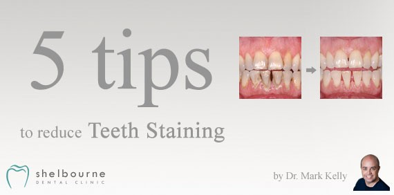 5 tips to reduce teeth staining