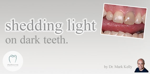 Shedding light on dark teeth