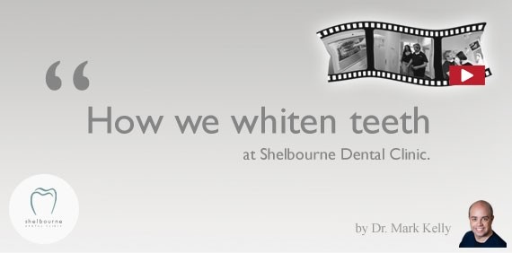Video: How we whiten teeth