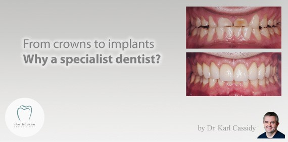 From Crowns to Implants: Why a Specialist Dentist?