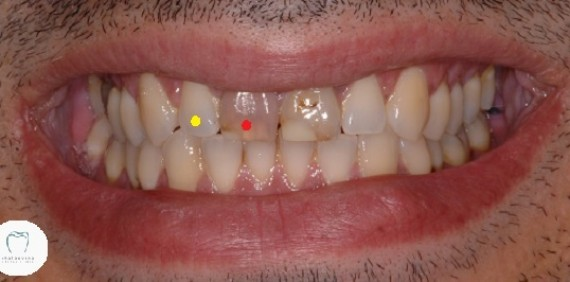 Dental Crowns: Get the Basics Right First.