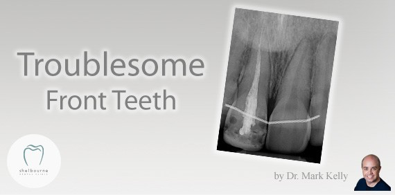 Troublesome Front Teeth