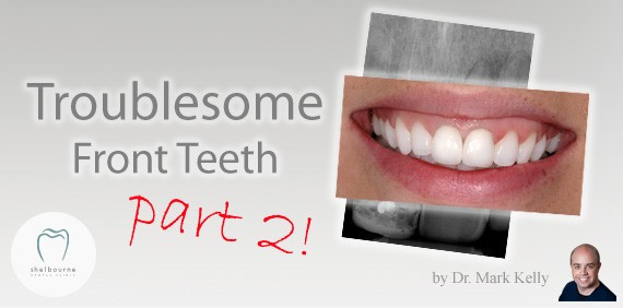 Troublesome Front Teeth - Part 2