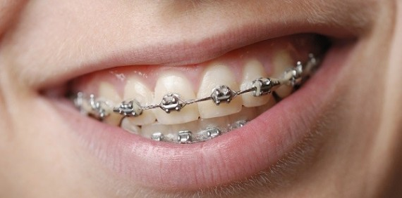 Young Childrens' Dental Health of No Importance