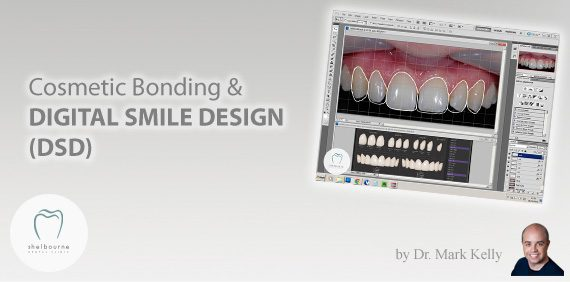 Cosmetic Bonding and Digital Smile Design