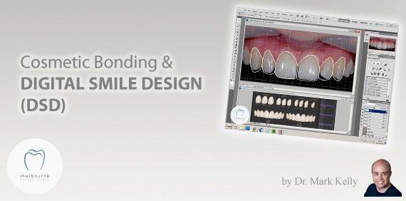 Cosmetic Bonding and Digital Smile Design