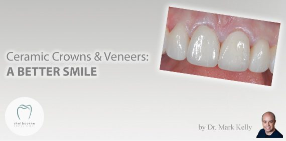 Ceramic Crowns and Veneers: A Better Smile